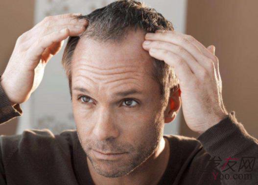 男性发际线后移原因是什么,怎么治疗最为稳妥?