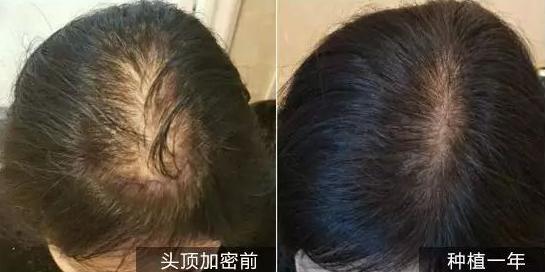 女性植发手术效果怎么样呢?上海新生植发头顶加密2500单位