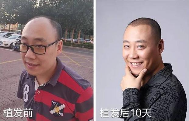 天津新发现植发3000单位,植发后分享经验