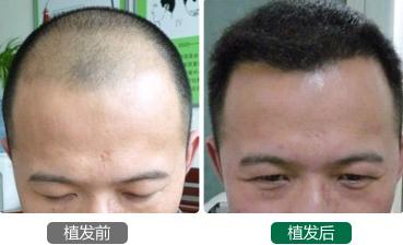 在广州微雨植发3500个毛囊单位,两年后我和大家一起总结经验