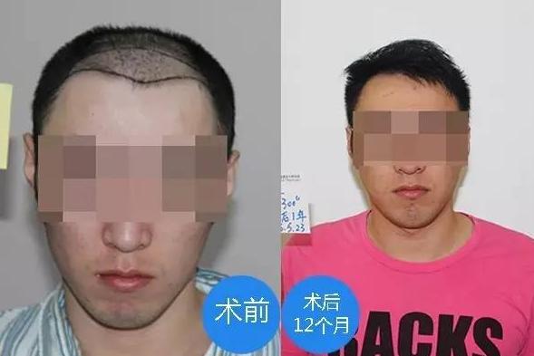 去广州新发现植发案例,术后一年大家看我恢复的效果怎么样