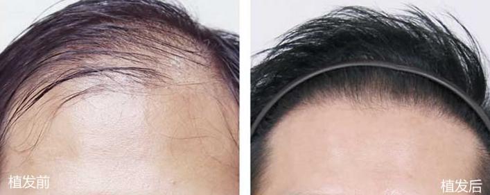 徐州华美头顶加密植发手术,精密无痕植发3500毛囊单位