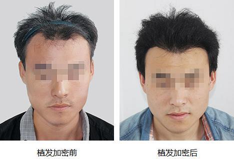 南京华美发际线植发1800单位,手术恢复后看效果怎么样