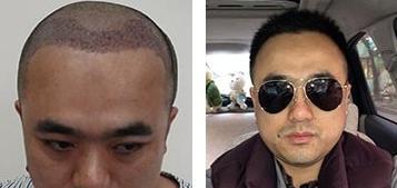 成都丝恒头顶加密植发2200单位,术后恢复一年植发案例