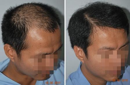 重庆仁爱植发案例,植发前后对比效果