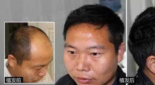 杭州新生植发医院植发4000单位,王先生植发效果分享