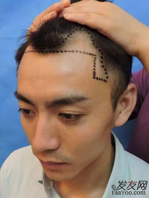 植发手术成功率怎么样?会失败吗?