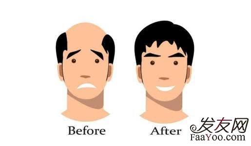 科普:植发后,头发还会继续掉吗?