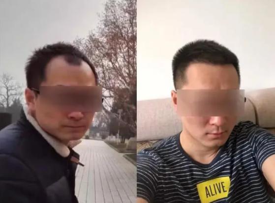 深圳植发需要多少钱?看苏州李先生在深圳倍生植发案例