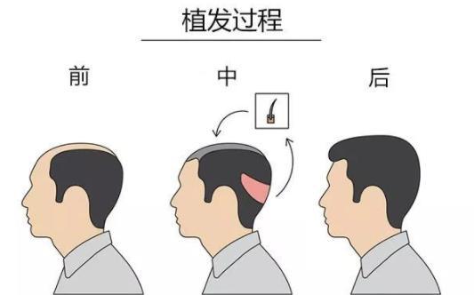 植发后能坚持多久?医生说永久是真的假的?