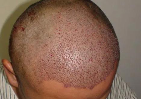 植发是怎么收费的?你关心的植发问题科普都在这里