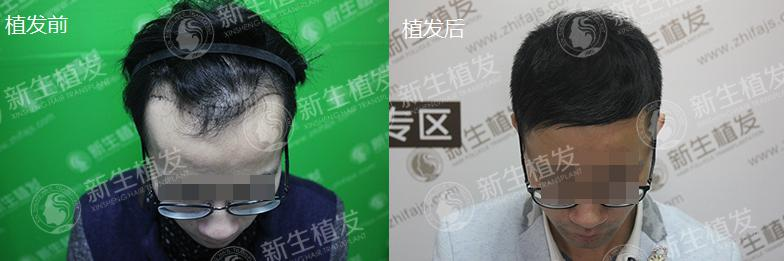 广州新生植发怎么样?李先生亲自分享本人真实植发案例