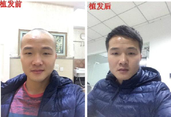 广州植发贵不贵?广州新生植发3000单位前后对比