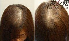 患上肾虚型脱发不仅仅有男性,女性也会患上此脱