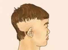 植发手术是治疗头部疤痕最有效的办法!