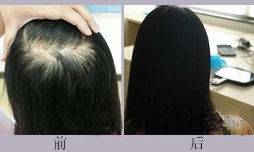 植发的头发结石吗