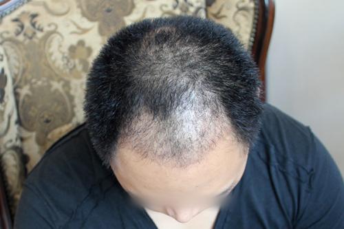 植发都掉了吗