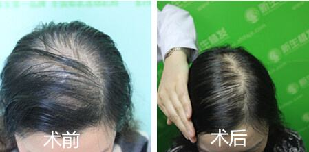 种植毛发效果好吗?