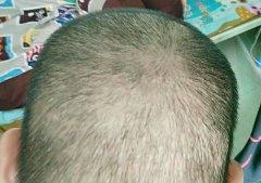 二次植发我选择了科发源