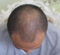 植发手术让我结束掉不自信