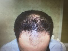 植发手术真的可以让一个找到自信?3