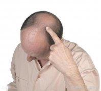 植发后遗症有哪些