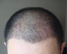 植发后出现毛囊炎怎么办