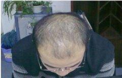 肾虚型脱发是永久的吗