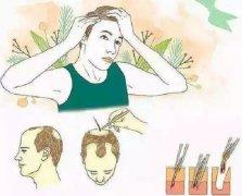 植发的效果能够维持多久