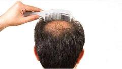 女性植发和男性植发的区别