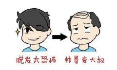 植发有着哪些好处