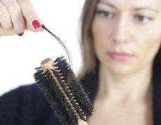 女生会不会得脂溢性脱发