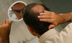 脂溢性脱发应该要怎么生发
