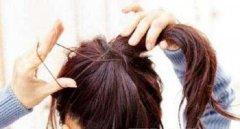 怎么治疗物理性脱发