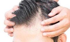 怎么治疗化学性脱发