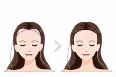 发际线植发会有危险吗