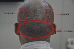 目前的植发技术中有哪些?