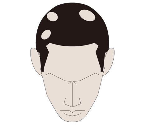 斑秃都会有什么症状