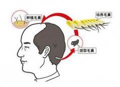 植发手术后一定要注意这些!