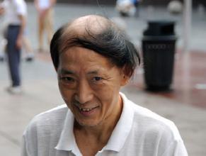 雄性脱发一般都会从几岁开始?