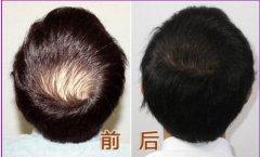 通过植发手术的头发还会在掉落吗?