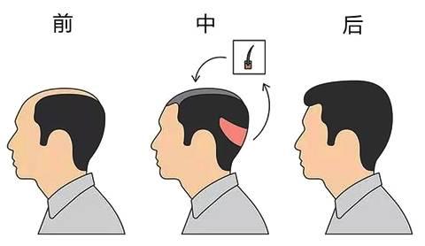 植发的时候需要剃光头吗?
