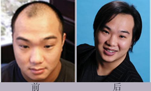 植发效果可以保持多久