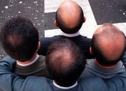 脂溢性脱发怎么治疗?