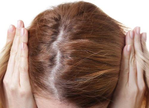 精神性脱发有痊愈的可能吗?