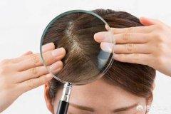 女性脱发的原因与治疗