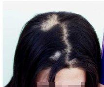 什么原因会造成斑秃