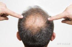 脂溢性脱发可以根治吗