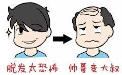 脂溢性脱发治疗多久会有效