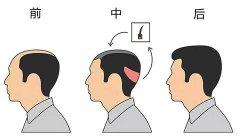现在植发技术成熟了吗